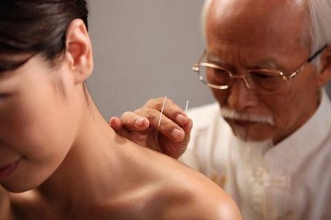 Châm cứu bấm huyệt giảm đau sau gáy