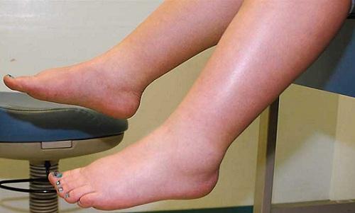 Tại sao bị bệnh sưng phù chân