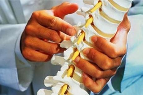 Triệu chứng của bệnh vôi hóa cột sống