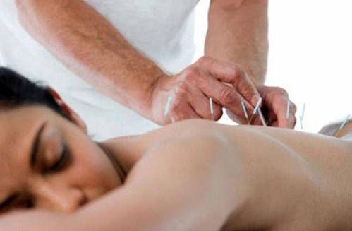 Châm cứu chữa đau lưng