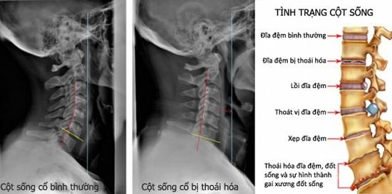 hỗ trợ chữa thoái hóa xương khớp hiệu quả
