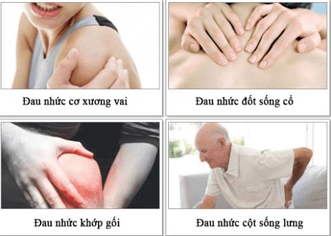 Bệnh xương khớp có lẽ không còn xa lạ với nhiều người