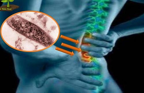 Các dấu hiệu của bệnh lao cột sống