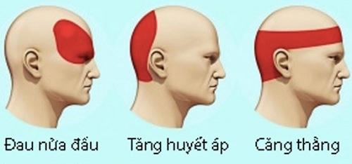 Nguyên nhân đau đầu do đâu