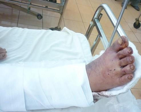 Phẫu thuật chữa phù nề chân
