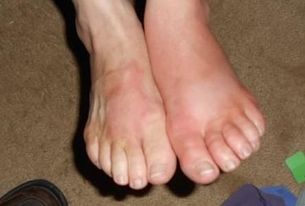 PHÙ chân do bệnh thận