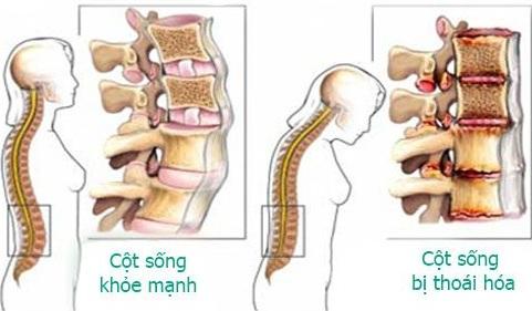 Bệnh thoái hóa cột sống gây đau lưng